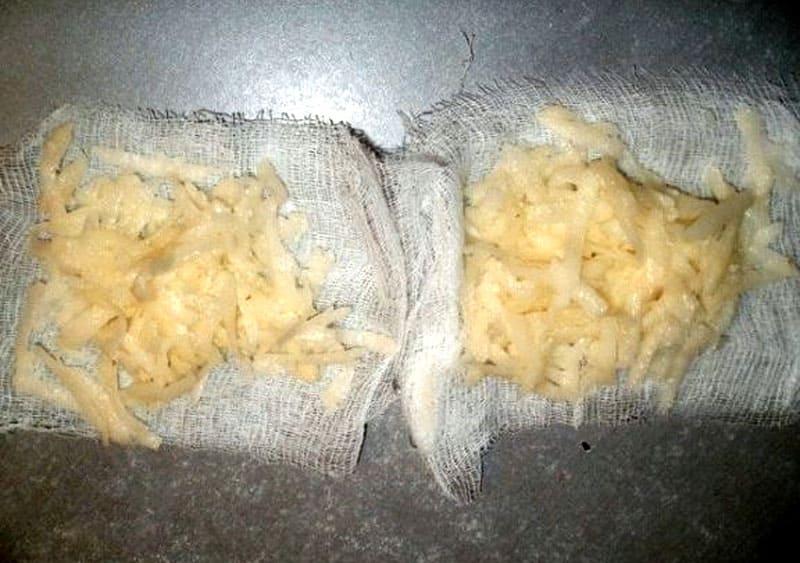 Лучше всего потереть картофель и уже потом нанести на обожжённый участок