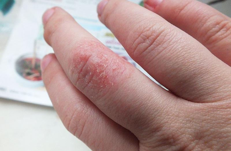 Пример аллергической реакции на стиральный порошок